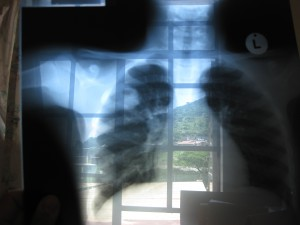 An xray of a patient with TB